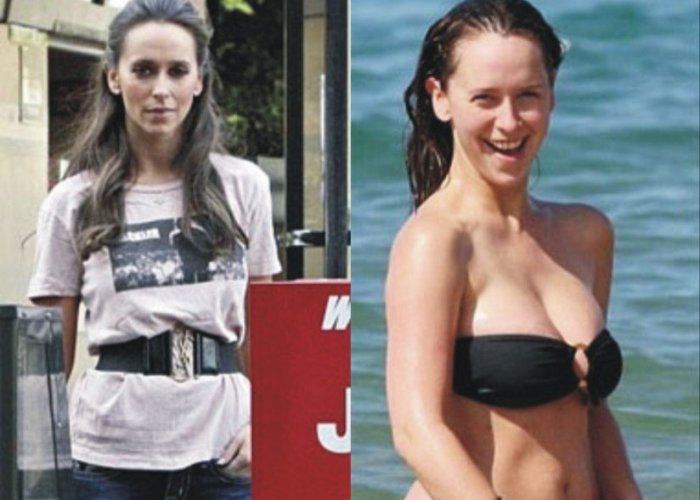 Таблетки для похудения Орсотен и Орсотен Слим: отзывы ...